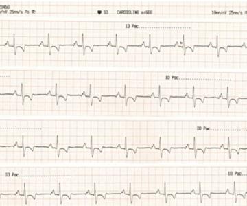 3.2.cardiologia2